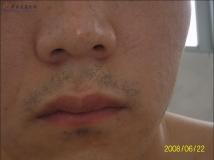【手术疤痕】9年的面部疤痕,怎么治疗