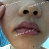 嘴角做扩张器手术后有拉扯,请问有办法补救吗?