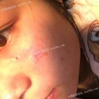 面部疤痕手术切除后是不是比之前好?