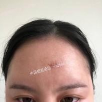 额头凹疤切缝第十一天