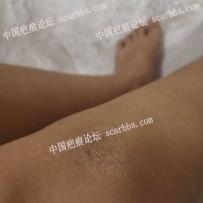 膝盖疤痕可以切除吗,我该怎么办?