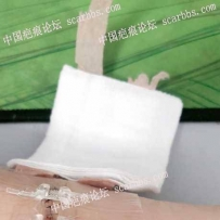 手臂疤痕修復之路