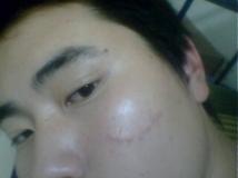 【小问题】大家帮我看看我脸上的疤痕给我点治疗意见吧