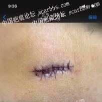 额头手术第四天,会不会留疤,怎么护理,怎么治疗