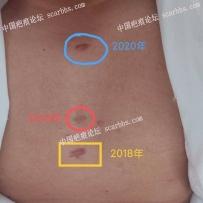 胸前的疤痕疙瘩怎么治疗效果好不复发,太影响美观了!