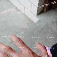 手指瘢痕挛缩的激光治疗
