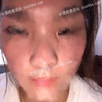 鼻子上的手术疤痕应该植皮还是切除?