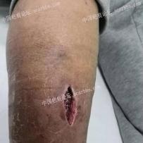 手术后伤口感染无法缝合、防疤治疗-2