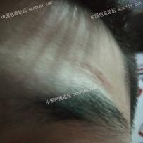 额头疤痕该怎么修复?