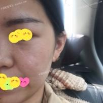 面部手术缝合留下的白色疤痕
