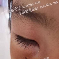 孩子面部受伤缝了美容针,求助