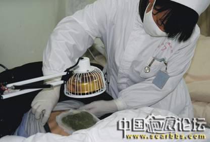 中医治疗疤痕疙瘩的偏方、效果及医院