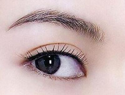 为什么有的人作割双眼皮手术会留下疤痕?
