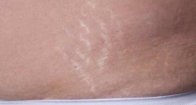 为什么孕妈妈在孕期容易出现妊娠纹?