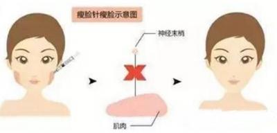 注射肉毒素治疗疤痕的常见问题介绍