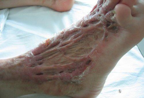 挛缩性瘢痕形成的三个阶段91-烧汤伤疤痕图片-中国疤痕论坛