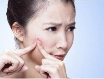 """""""痘痘""""瘢痕的治疗策略有哪些?"""
