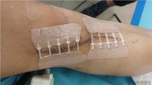 瘢痕术后处置要点有哪些?56-烧汤伤疤痕图片-中国疤痕论坛