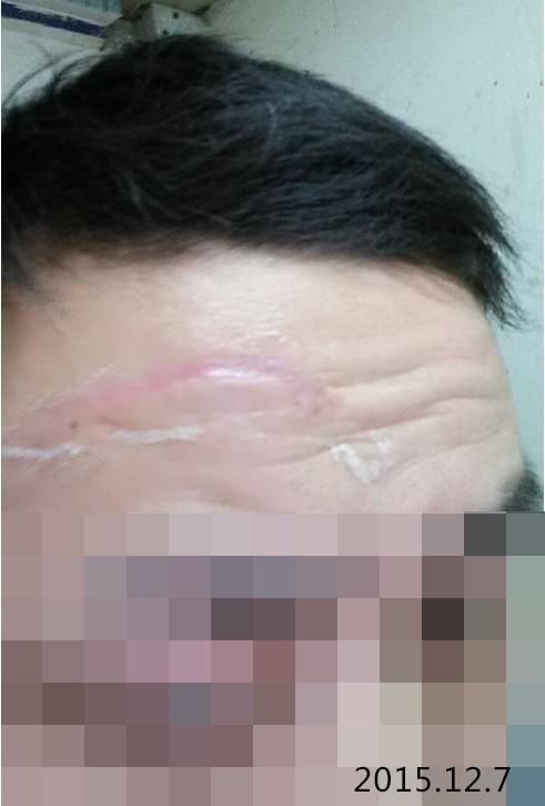 划伤后怎样做能减少疤痕生成,附:划伤案例分享4-烧汤伤疤痕图片-中国疤痕论坛