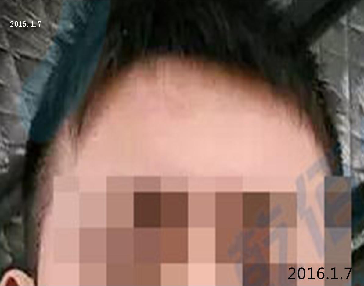 划伤后怎样做能减少疤痕生成,附:划伤案例分享93-烧汤伤疤痕图片-中国疤痕论坛