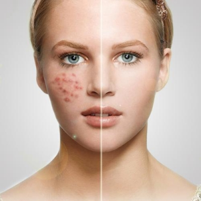 夏季抗痘的方法
