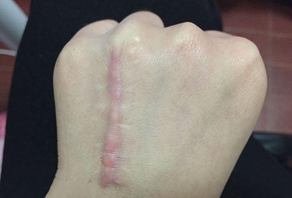 手术疤痕的原因哪些7232-烧汤伤疤痕图片-中国疤痕论坛
