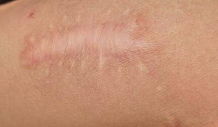 疤痕整形手术后多长时间可以运动?2-烧汤伤疤痕图片-中国疤痕论坛