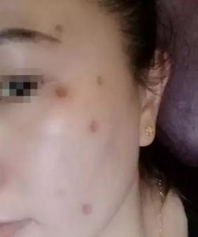 选择药物点痣一定要慎重再慎重!51-烧汤伤疤痕图片-中国疤痕论坛