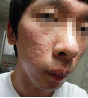 关于痘坑的激光治疗29-烧汤伤疤痕图片-中国疤痕论坛