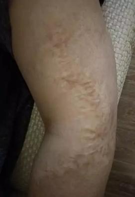 疤痕应该做激光吗?什么时候做最好?233-烧汤伤疤痕图片-中国疤痕论坛