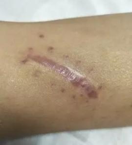 疤痕应该做激光吗?什么时候做最好?222-烧汤伤疤痕图片-中国疤痕论坛