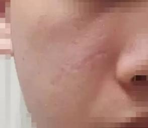 疤痕应该做激光吗?什么时候做最好?330-烧汤伤疤痕图片-中国疤痕论坛