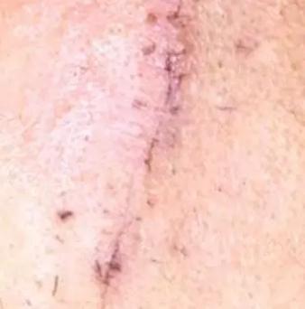 疤痕应该做激光吗?什么时候做最好?298-烧汤伤疤痕图片-中国疤痕论坛