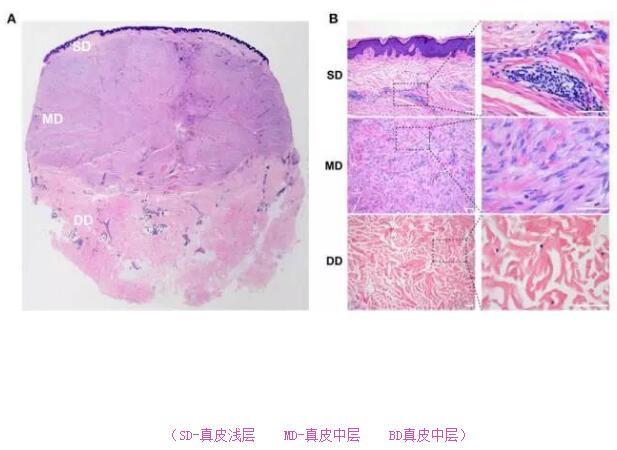 瘢痕疙瘩的激素治疗如何更有效31-烧汤伤疤痕图片-中国疤痕论坛