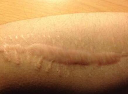 如何才可以正确的预防疤痕增生出现呢?99-烧汤伤疤痕图片-中国疤痕论坛