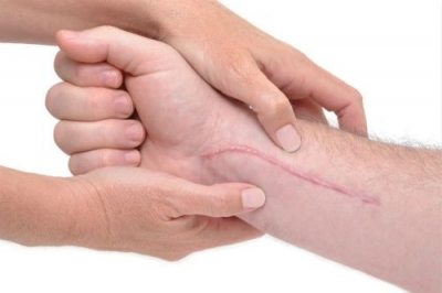 烧伤疤痕疙瘩概述