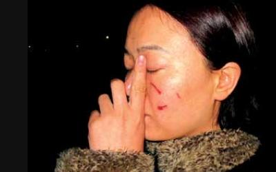 面部疤痕美容及术前护理