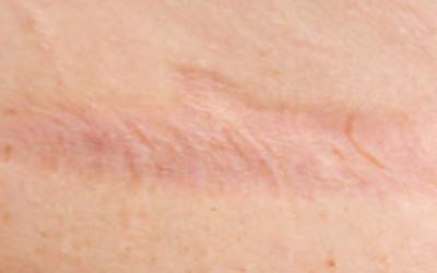 引起疤痕原因主要有哪些,疤痕的的危害性一定要知道!
