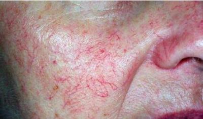 脸上出现的红血丝要如何才能去除呢?