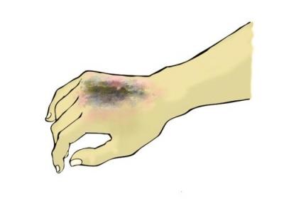 探讨住院患者意外烫伤的护理体会