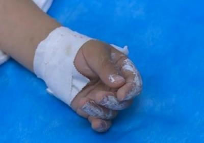 小儿手烧伤后包扎疗法是妥当的