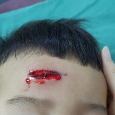 面部皮肤软组织外伤急诊整形美容修复