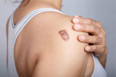 疤痕疙瘩术后放射治疗的临床价值