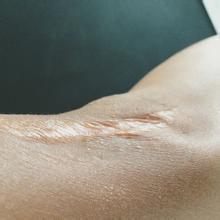 上肢挛缩疤痕的特点及修复方法[tag]