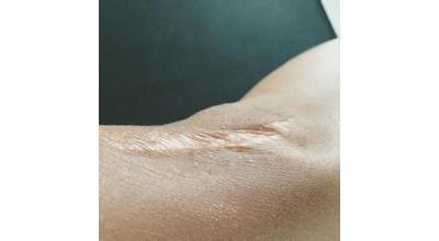 上肢挛缩疤痕的特点及修复方法