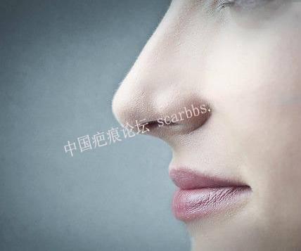 鼻部疤痕畸形修复[tag]