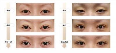 双眼皮整形修复术的护理效果观察