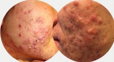 痤瘡的臨床研究病因及發病機制