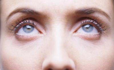 割完双眼皮的术后护理要注意以下五点