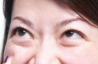 眼袋祛除要分清除类型,才好对症求医